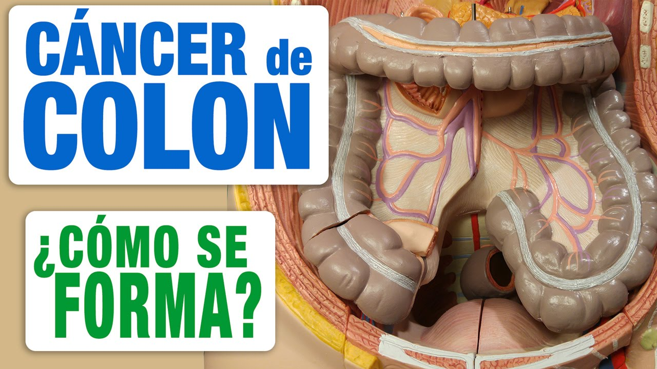 Cancerul de colon - simptome si diagnostic