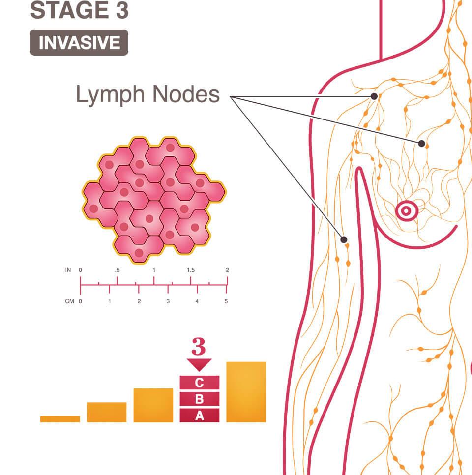 virus del papiloma humano femenino tratament cu usturoi pentru paraziti intestinali