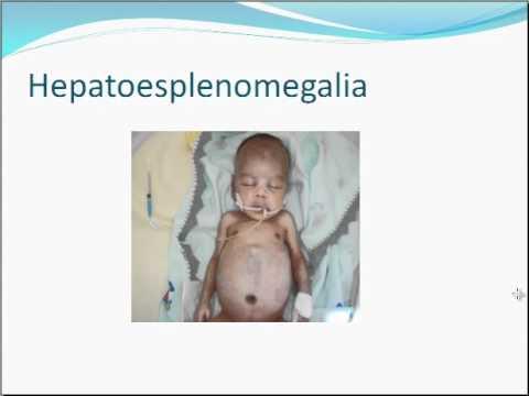 toxoplasmoza congenitala)
