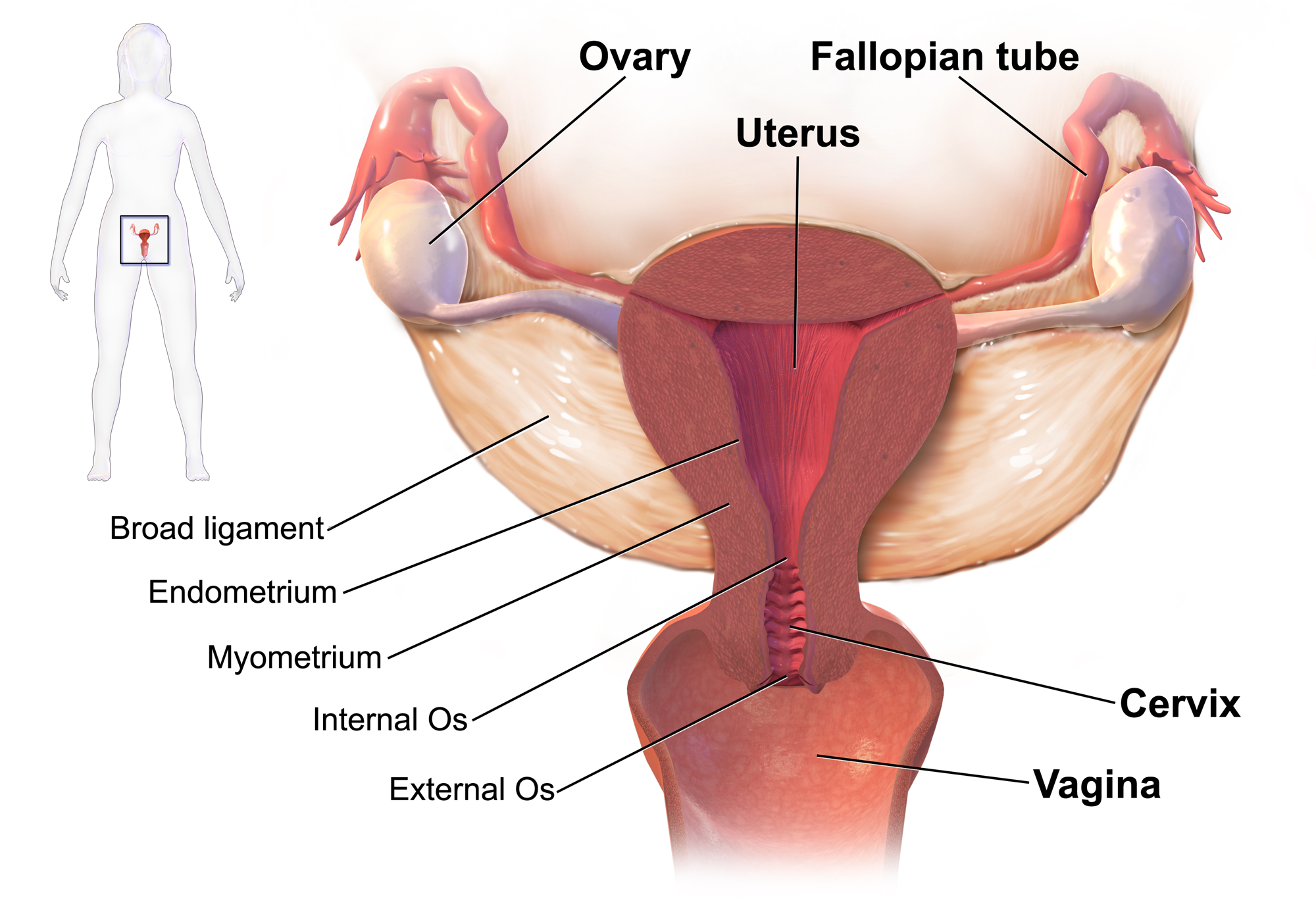 ovarian cancer yeast infection