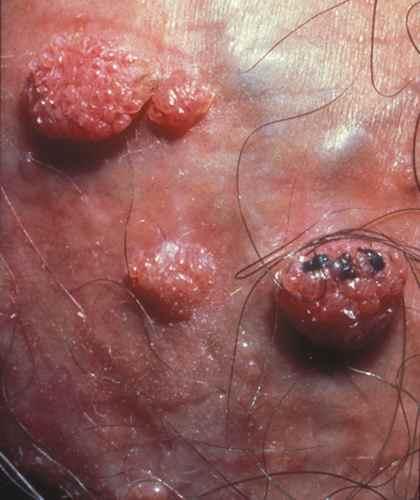 papillomavirus et urticaire)