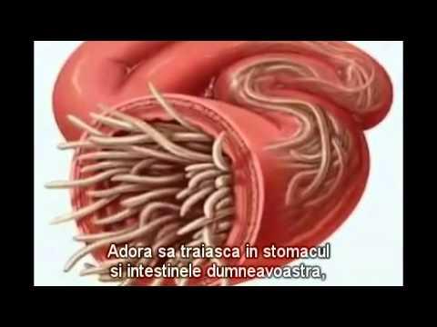 duador oxiuri simptome viermisori adulti