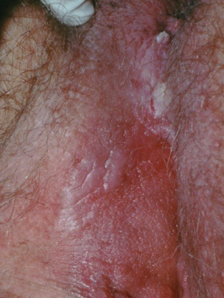 hpv high risk with reflex to 16/18