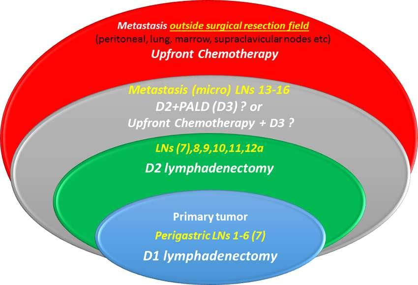 gastric cancer d2 lymphadenectomy