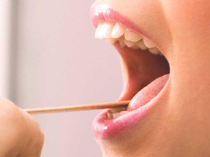 papilloma on tip of tongue)