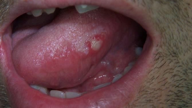 Lehet-e fémes íz a szájban prosztatagyulladás miatt