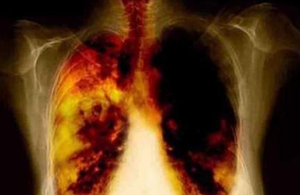 cancer pulmonar stadiu 4 simptome