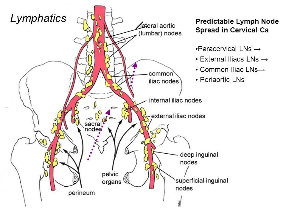 cervical cancer lymph node spread