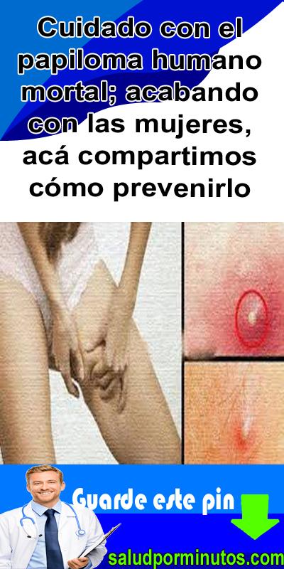 papiloma virus de la mujer hpv-virus test beim mann