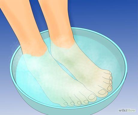 wart treatment in foot)