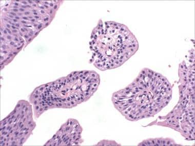 papilloma on bladder