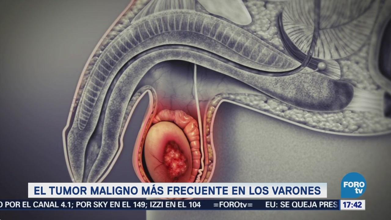 cancer testicular maligno