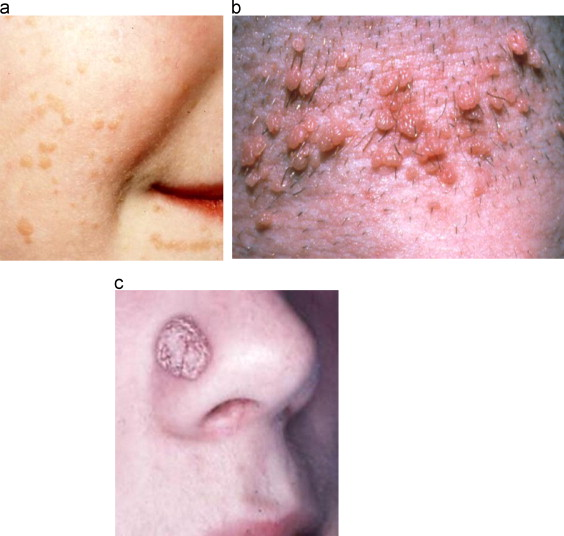 hpv and nose sores