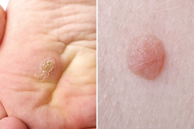 virus del papiloma sintomas)