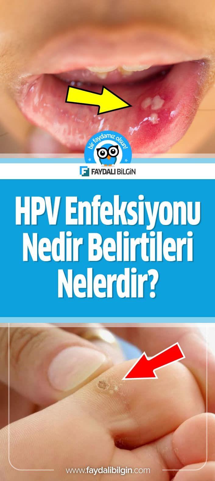 hpv virusu nedir erkek
