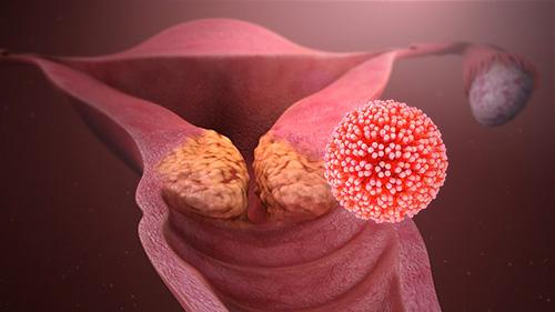 lesione per papilloma virus)