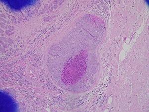 papiloma intraductal de mama tratamento)