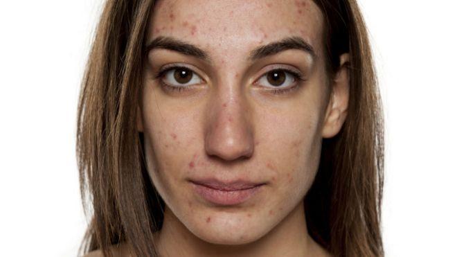 cancer de piele acnee)