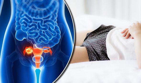 ovarian cancer deadly)