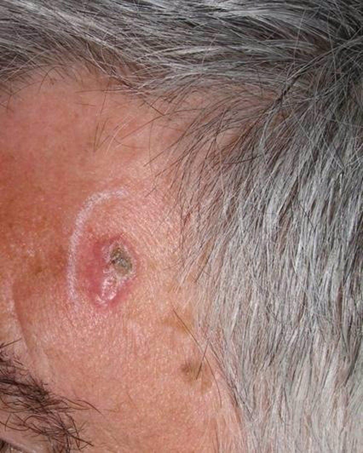 cancer de piel por papiloma