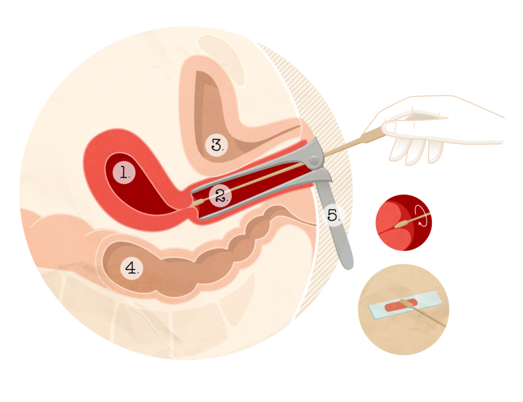 traitement papillomavirus stade 2