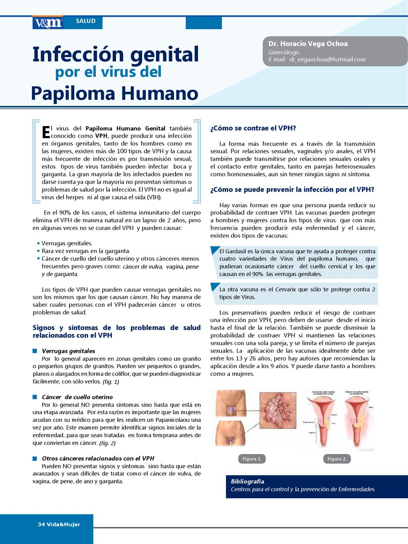 papiloma humano signos y sintomas)
