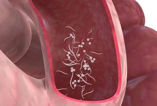 Parazitozele intestinale, probleme de actualitate
