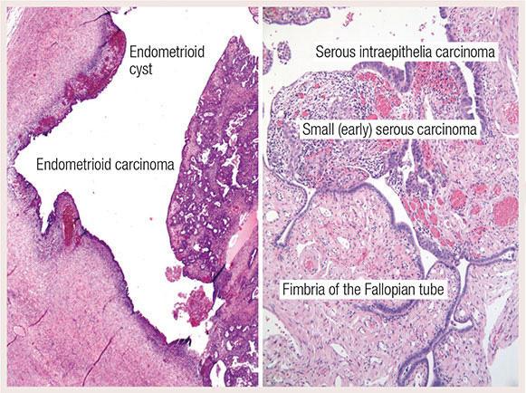 ovarian cancer histopathology)