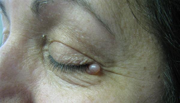 icd 10 papilloma left eyelid)