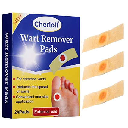 wart removal on foot doctor cancer de renal
