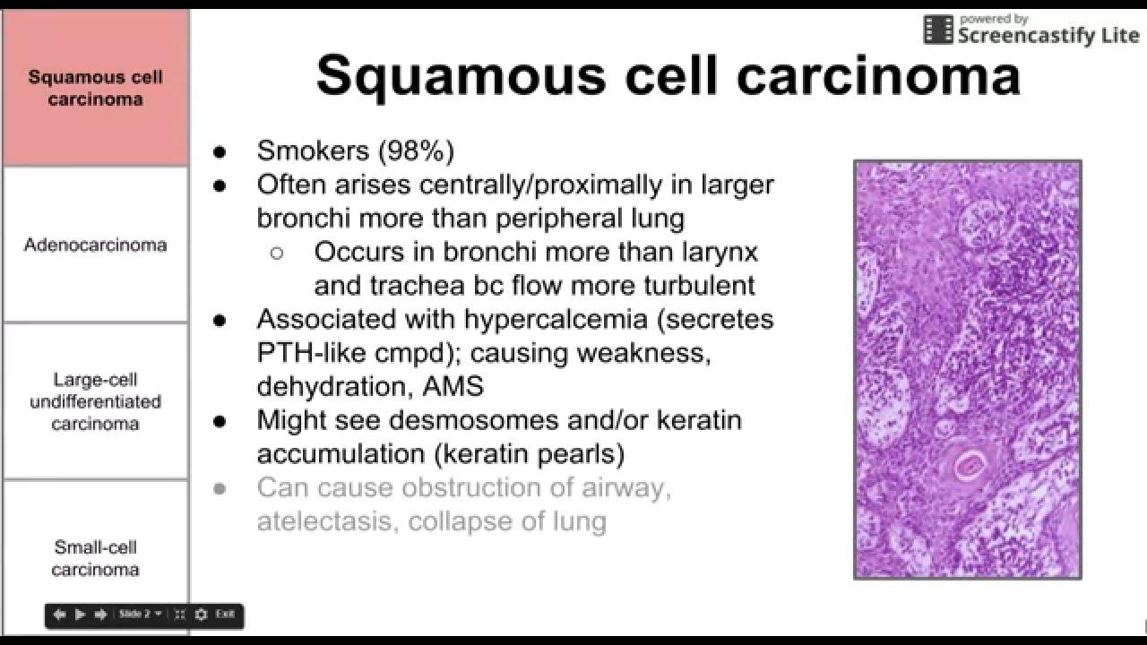 cancer scuamos pulmonar)