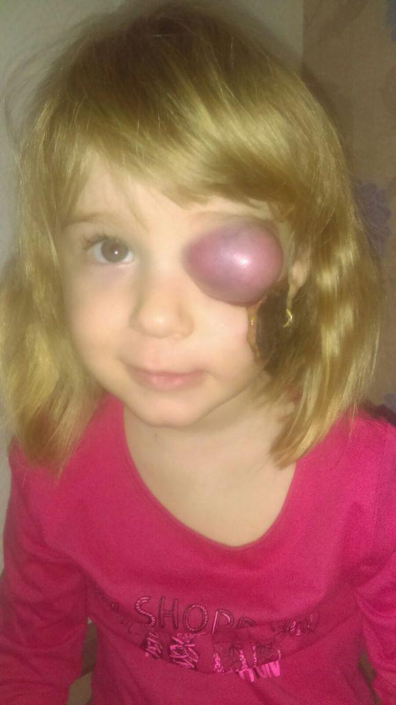 cancerul la ochi)