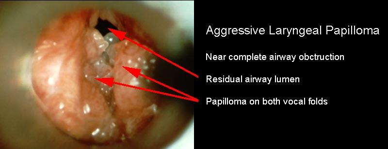 juvenile papilloma of larynx)
