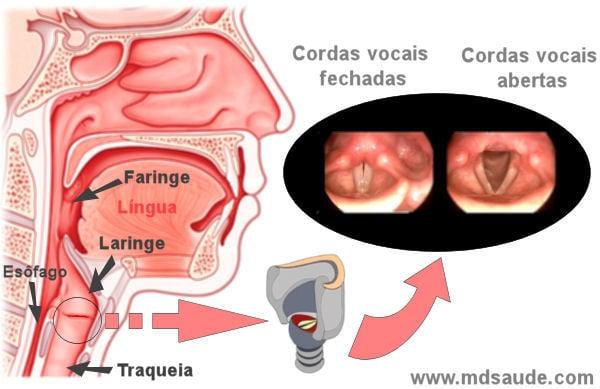 cancer na laringe sintomas)