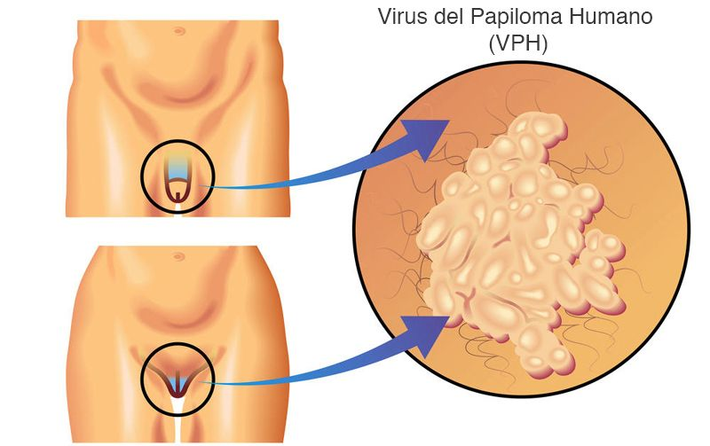 virus del papiloma humano agente causal cancer genetic testing ontario