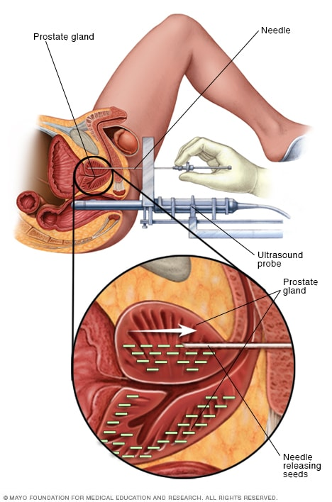 rectal cancer in brachytherapy)