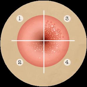 papillomavirus contagieux)