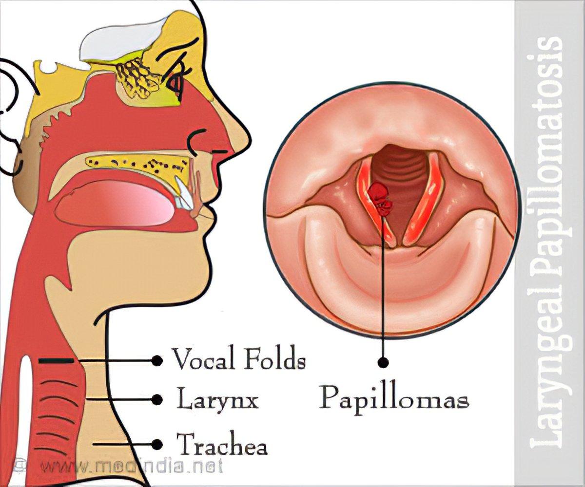 laryngeal papillomatosis cancer
