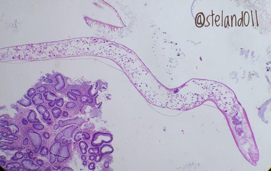 enterobius vermicularis filo cancer de col uterin ascus