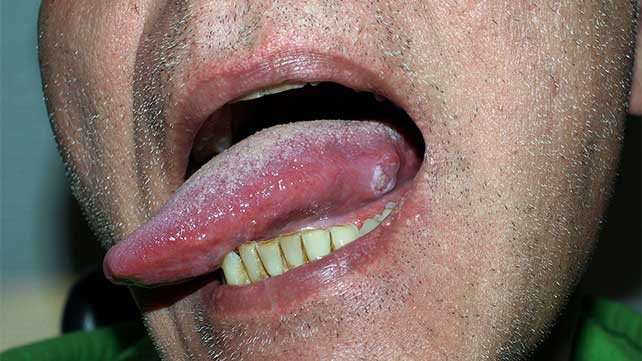 hpv on my tongue