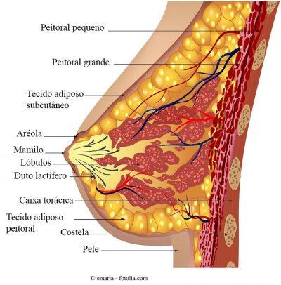 papiloma intraductal en el seno