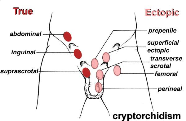 cancer testicul necoborat)
