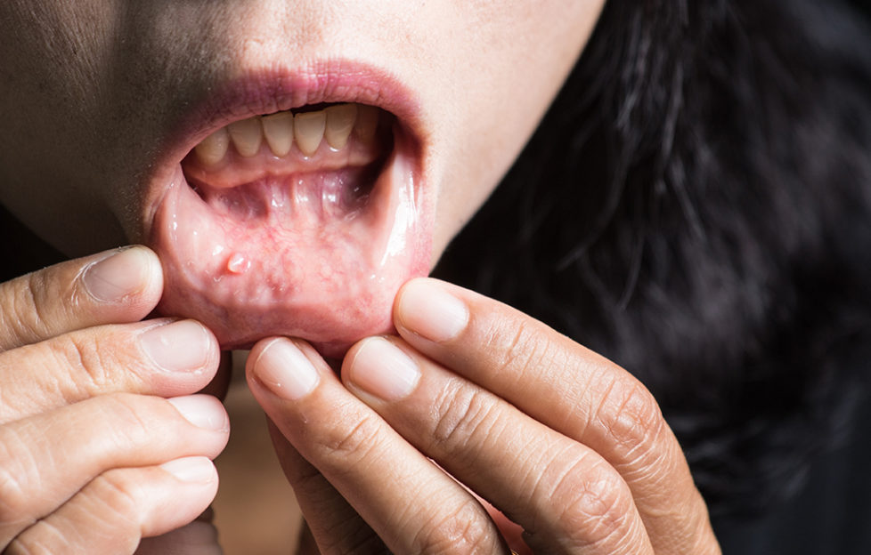 hpv mouth early signs human papillomavirus infection virale