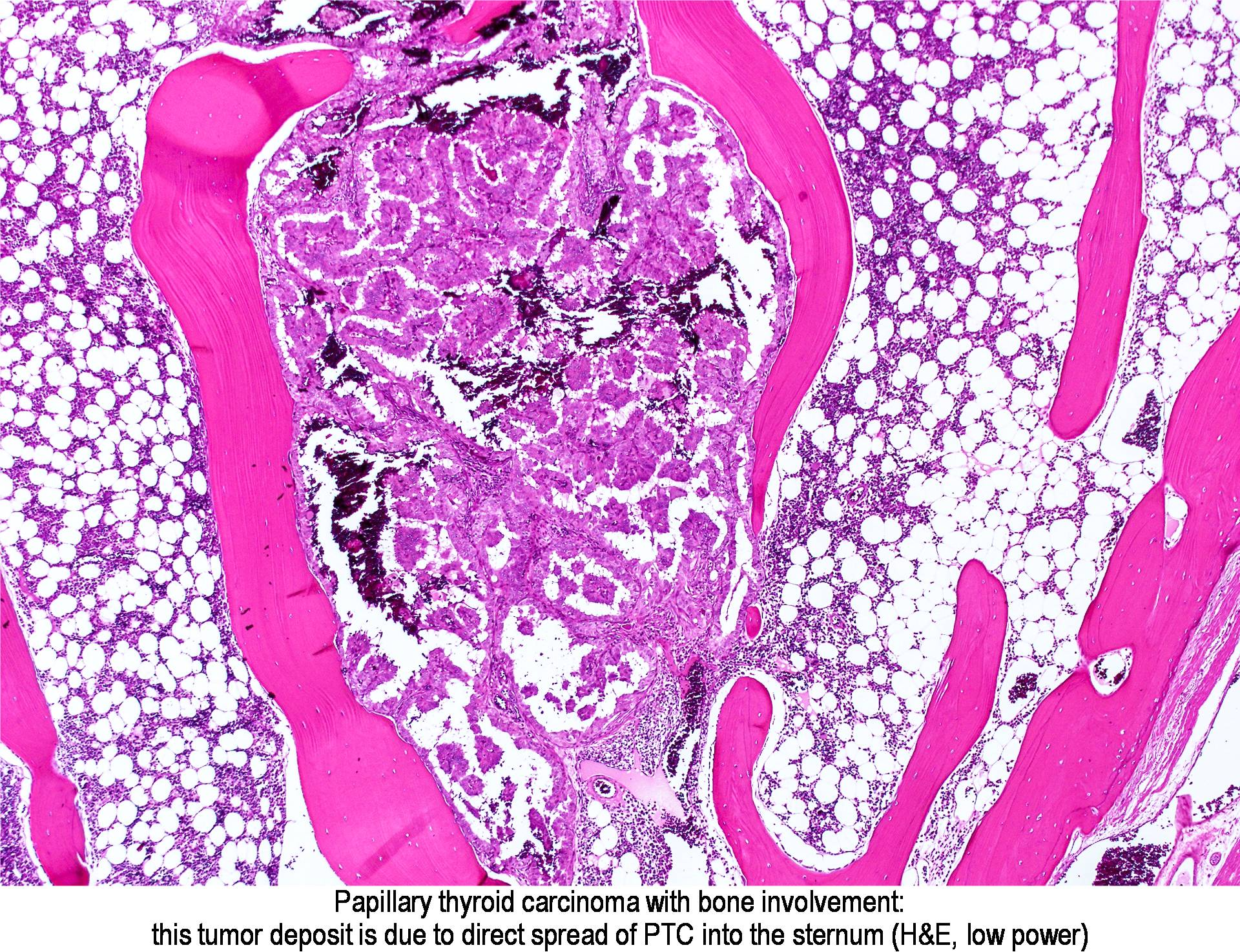 papillary thyroid cancer in bones