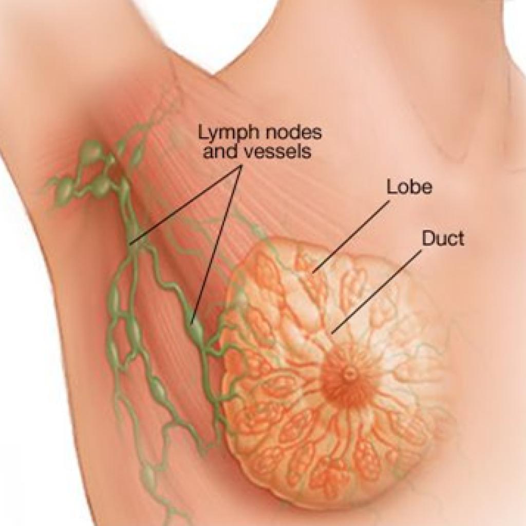 cancerul de san stadiul 3