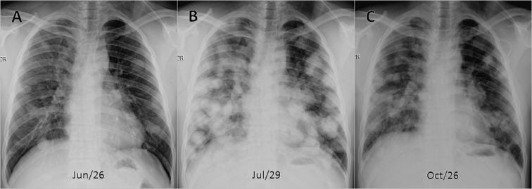 endometrial cancer lung metastasis)