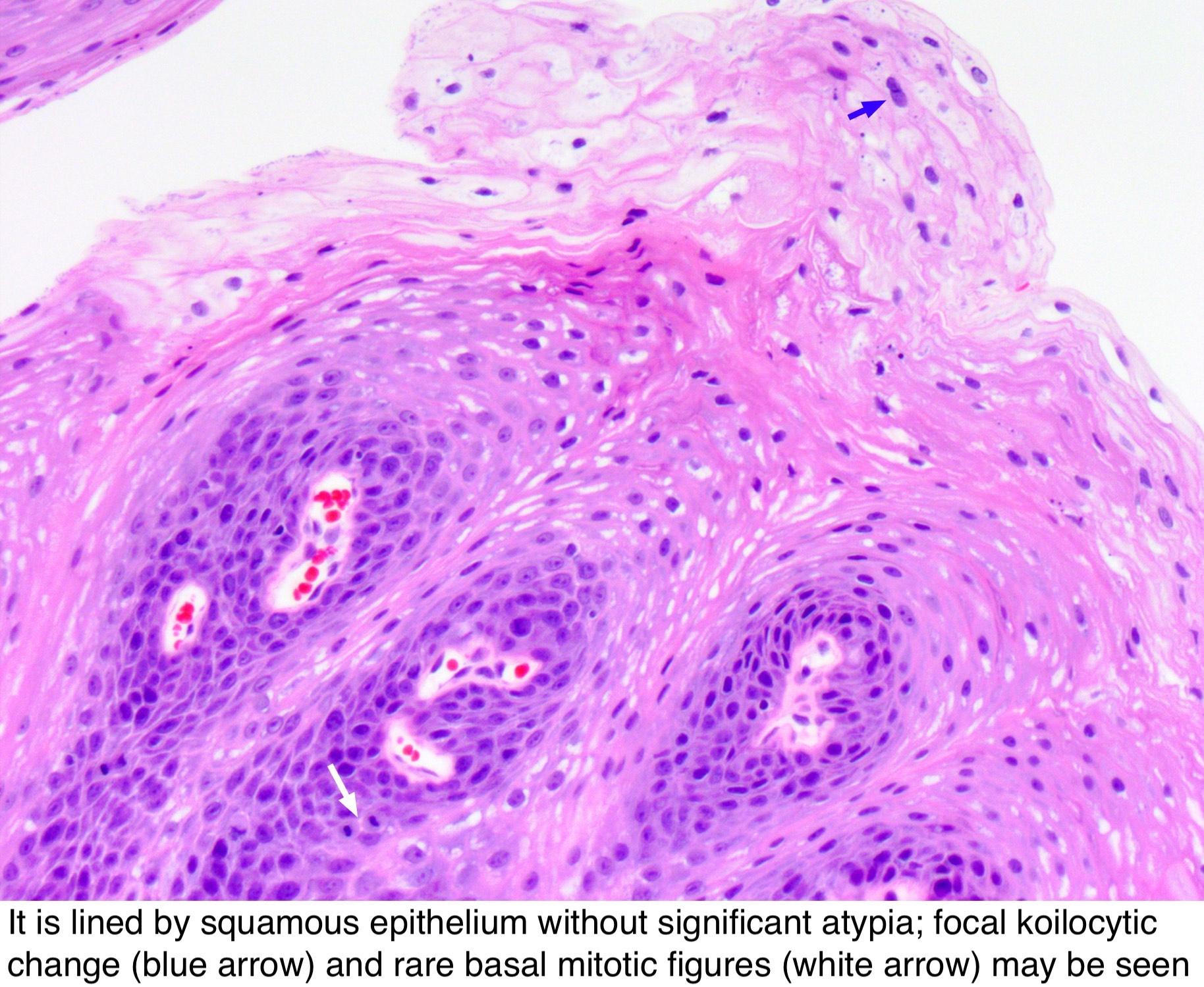 Sensul mucoasei scuamoase cu hiperplazie epitelială