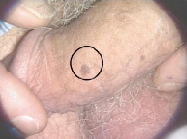 hpv virus in males)