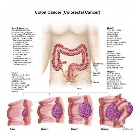 4 colorectal cancer)