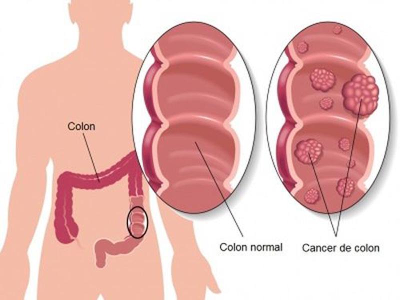 Cancerul colorectal poate fi vindecat daca este depistat precoce